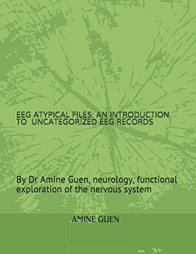 EEG ATYPICAL FILES: AN INTRODUCTION TO UNCATEGORIZED EEG RECORDS
