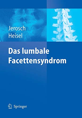 Das lumbale Facettensyndrom