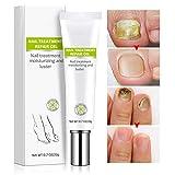 Nail Repair Cream, Effective Toenail Fungus Treatment Fungus Remover Foot Nail Repair Cream Restores the Healthy Appearance of Nails