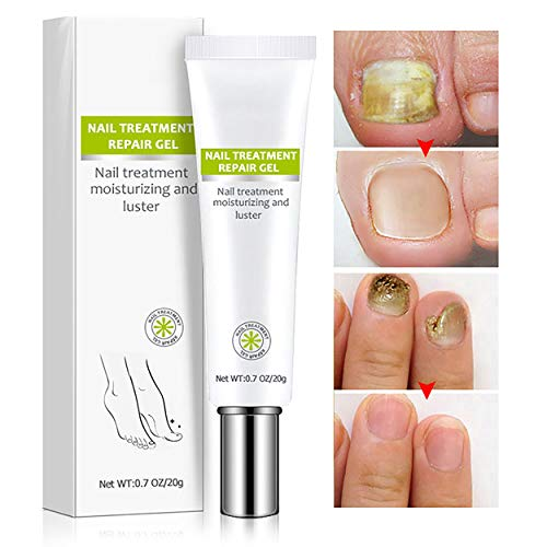 Nail Repair Cream, Effective Toenail Fungus Treatment Fungus Remover Foot Nail Repair Cream Restores the Healthy Appearance of Nails