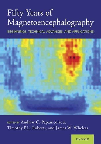 Fifty Years of Magnetoencephalography: Beginnings, Technical Advances, and Applications
