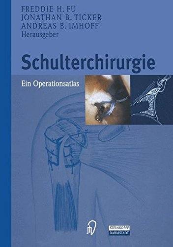 Schulterchirurgie. Ein Operationsatlas