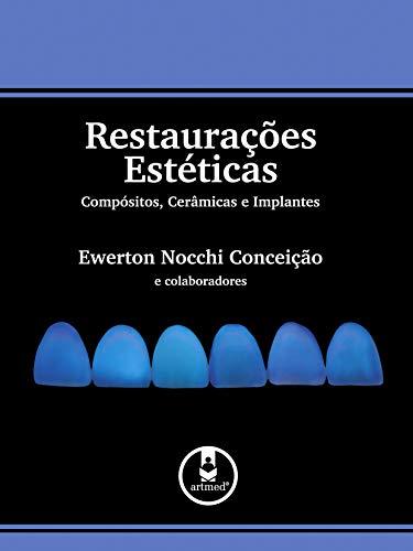 Restaurações Estéticas: Compósitos, Cerâmicas e Implantes
