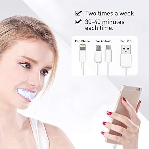 Kit Blanchiment Dentaire Luckyfine Incluant 30ml de Gel Blanchiment Dentaire, Lampe Dentaire Technologie LED, Réalisez un Blanchiment Dentaire à la Maison, Ayez une Hygiène Bucco-Dentaire plus Saine