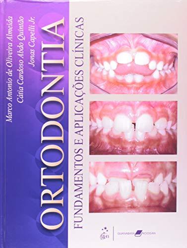 Ortodontia Fundamentos e Aplicações Clínicas