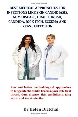 Best Medical Approaches for Infections Like Skin Candidiasis, Gum disease, Oral Thrush, Candida, Jock itch, Eczema and Yeast Infection