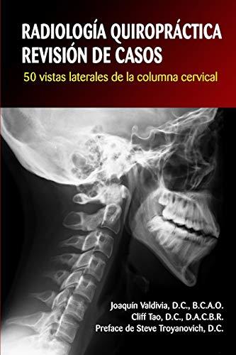 RADIOLOGÍA QUIROPRÁCTICA: REVISIÓN DE CASOS. 50 vistas laterales de la columna cervical (Spanish