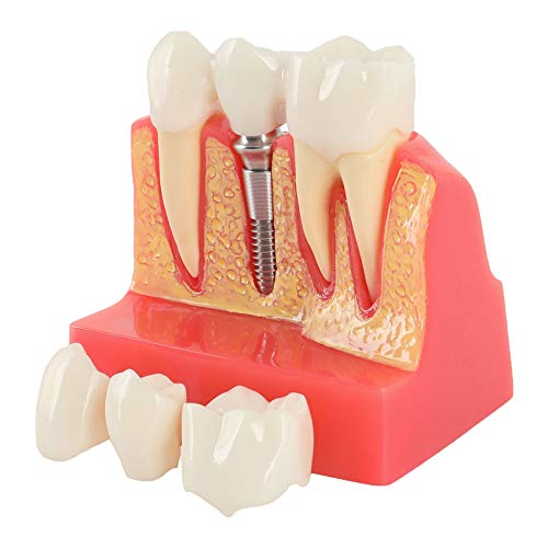 Annhua 4 Times Dental Implant Teeth Model Analysis Crown Bridge Demonstration Model, Dental Teeth Crown Roots Removable for Education, Patients Communication, Learning and Lab