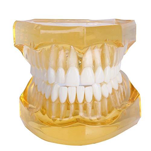 GEEFSU-Zahn Model Show Detaillierte Struktur Der Dental - Nach Oben und Unten Jaw Voll Mund Zähne Abnehmbare