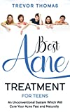 Best Acne Treatment for Teens: An Unconventional System Which Will Cure Your Acne Fast & Naturally