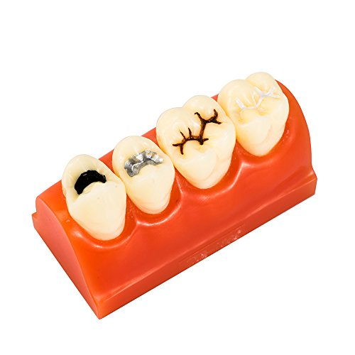 Easyinsmile Dental Pathology Teeth Study Teaching Model Sealantant Demonstration Tooth Model for Patient Education