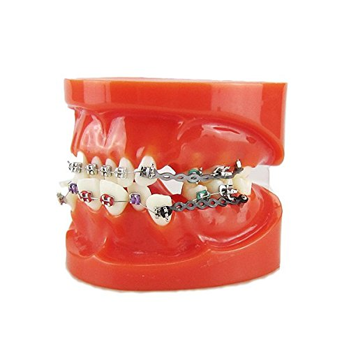 Melleco 歯列矯正歯列矯正歯列矯正歯付きブラケットElastolinkチェーンモデル
