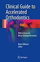 Clinical Guide to Accelerated Orthodontics: With a Focus on Micro-Osteoperforations