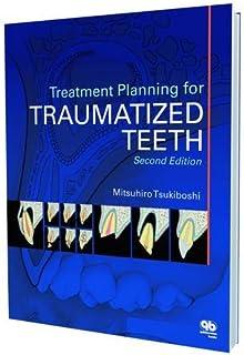 Treatment Planning for Traumatized Teeth
