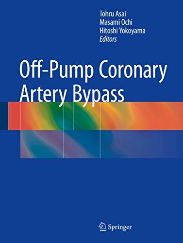 Off-Pump Coronary Artery Bypass (English Edition)