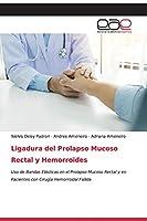 Ligadura del Prolapso Mucoso Rectal y Hemorroides