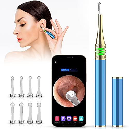 Vasgic Ear Wax Tool Removal with Camera, Ear Scope Otoscope with Light kit for iPhone and Android, Ear Cleaner for Humans