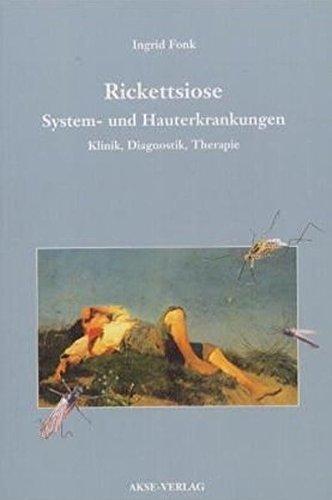 Rickettsiose – System- und Hauterkrankungen. Klinik, Diagnostik, Therapie