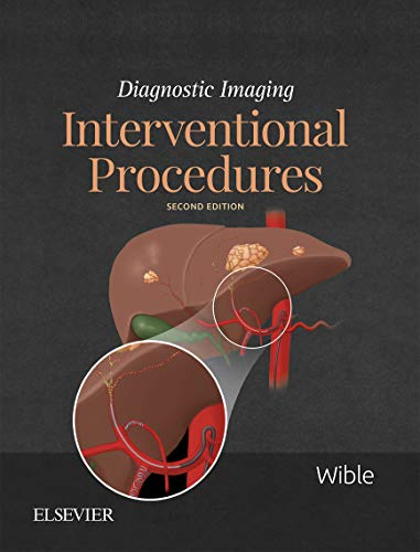 Diagnostic Imaging: Interventional Procedures E-Book (English Edition)