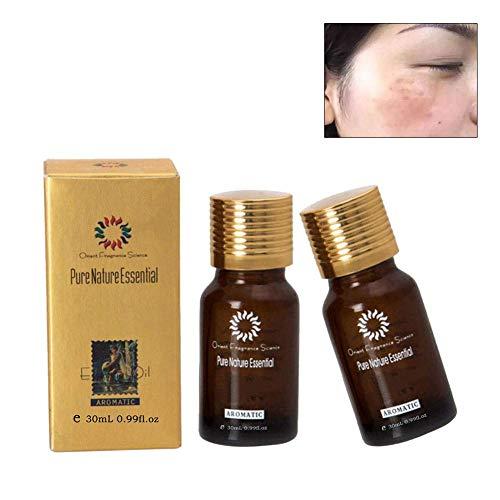 Huile essentielle naturelle pure, blanchissant éclaircissant l'huile pour le visage, élimine les taches d'Ance, réduit les taches brunes, les cicatrices d'acné et les rides.