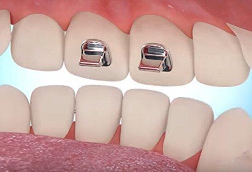 Bite Turbos para ortodoncia dental Tratamiento Ortodoncista Dentista / 20 piezas