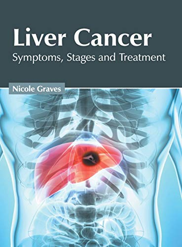 Liver Cancer: Symptoms, Stages and Treatment
