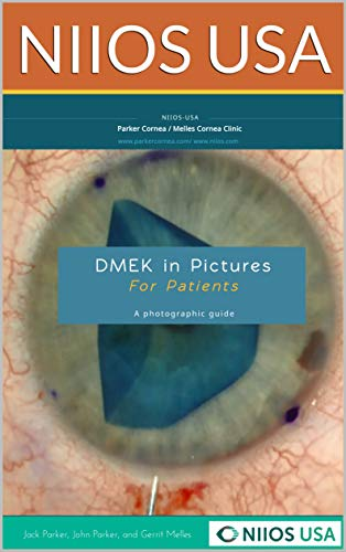 DMEK in Pictures, A patient\'s guide: a photographic guide (English Edition)