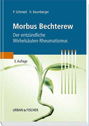 Morbus Bechterew: Der entzündliche Wirbelsäulen-Rheumatismus