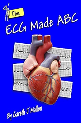 The ECG Made ABC from CreateSpace Independent Publishing Platform