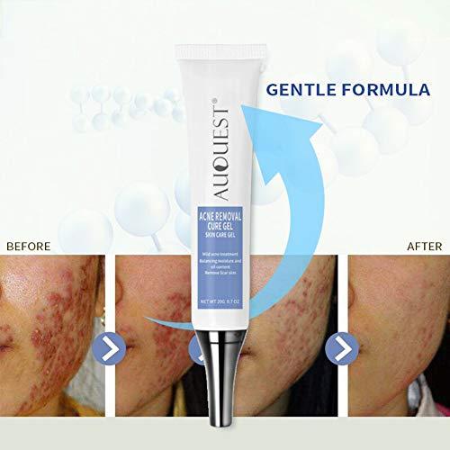 Acné Enlèvement Cure Gel Cicatrice Traitement De L'acné Pimple De Nettoyage Crème Blackhead Remover Soins De La Peau Yiitay