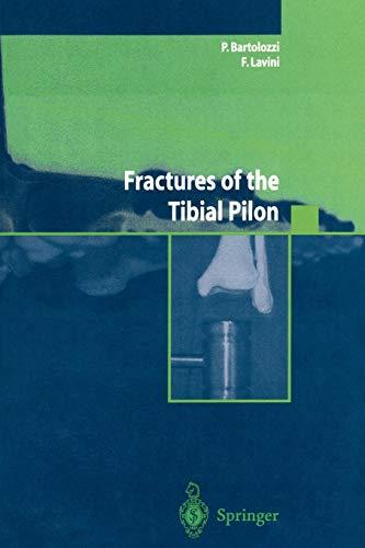 Fractures of the Tibial Pilon (Ortopedia e chirurgia mininvasiva)