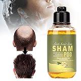 Champú, la pérdida de cabello con leche de coco nutritiva hecha de extractos de plantas Metabolismo del cuero cabelludo