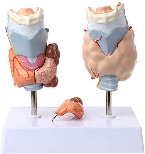 DIELUNY Pathology Anatomical Model Of Human Thyroid - On Model Of Anatomy Throat Tumor Thyroid Cyst Thyroid Medical Tool Scientific Model