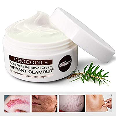 Scar Removal Cream For