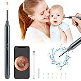 Earwax Remover Tool with Camera, Wireless Otoscope with LED Light, Waterpoof Earwax Removal Kit for Smart Phones & Tablets, Safe Ear Pick Ear Cleaning Tool Kit, Endocsope Kit for Adults Kids & Pets