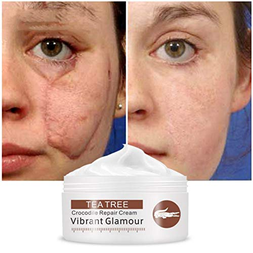 Acne Scar Removal Cream Moisturizing Acne Marks Stretch Mark Burn