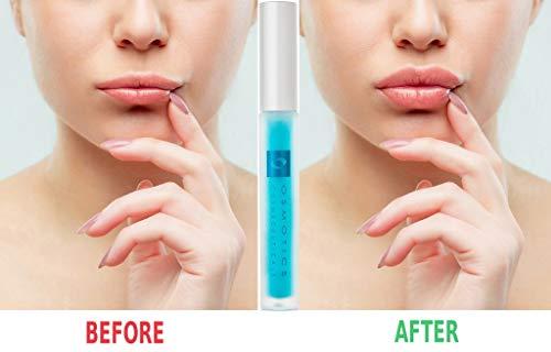 Osmotics Lip & Tuck
