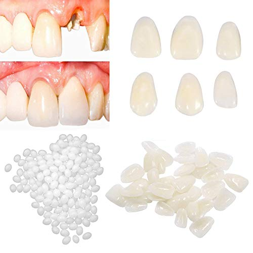 Brige Temporary Tooth Repair kit for Fix Filling the Missing Broken Tooth and Gaps-Moldable Fake Teeth Veneers and Thermal Beads Replacement Kit,Artfifical Teeth