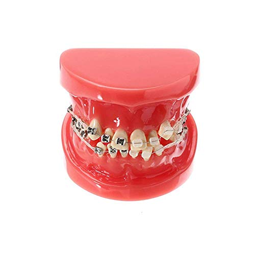 Ortodontisk Tandvårdsmodell Med Halv Keramisk Halvmetallfäste Med Ankarspik
