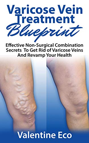 Varicose Vein Treatment Blueprint: Effective Non-Surgical Combination Secrets To Prevent, Get Rid Of Varicose Veins & Revamp Your Health (English Edition)