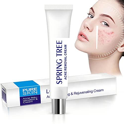 Acne Blemish Spot Treatments Acne Cream Acne Face Cream Skin Care...
