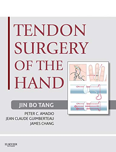 Tendon Surgery of the Hand E-Book: Expert Consult - Online and Print (English Edition)