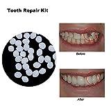 CXQZLH Pegamento sólido de Dientes Falsos, Kit de reparación Temporal de Dientes cosméticos para Dientes de Resina y Huecos Pegamento para dentaduras Creativas,20ml20g
