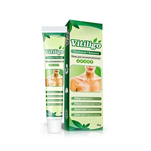 20g White Spot Disease Salbe Leukoplakia Disease Cream Vitiligo Hautpflegebalsam für Problemhaut