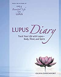 Systemic lupus erythematosus - Basic information for patients