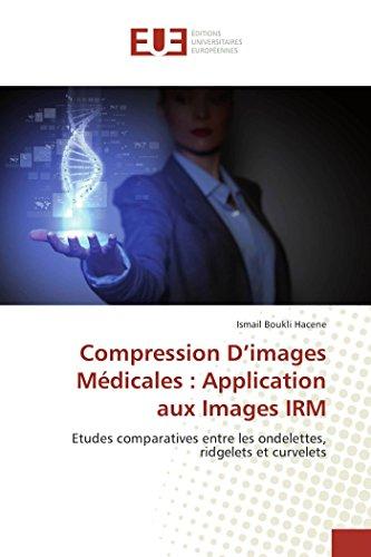 Compression D'images Médicales : Application aux Images IRM: Etudes comparatives entre les ondelettes, ridgelets et curvelets (Omn.Univ.Europ.)