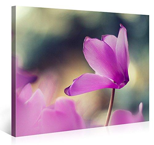 Gallery of Innovative Art – Inside out Flower – 100x75cm – Larga Stampa su Tela per Decorazione murale – Immagine su Tela su Telaio in Legno – Stampa su Tela Giclée – Arazzo Decorazione murale