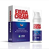 Eczema Cream for Adults Fast Relief, Healing of Redness, Dry, Irritated Skin, Itching & Rashes, Dermatitis & Rosacea. Healthier Skin   Vitamin B12 & Prebiotics Therapy Full Body Lotion   Exuda