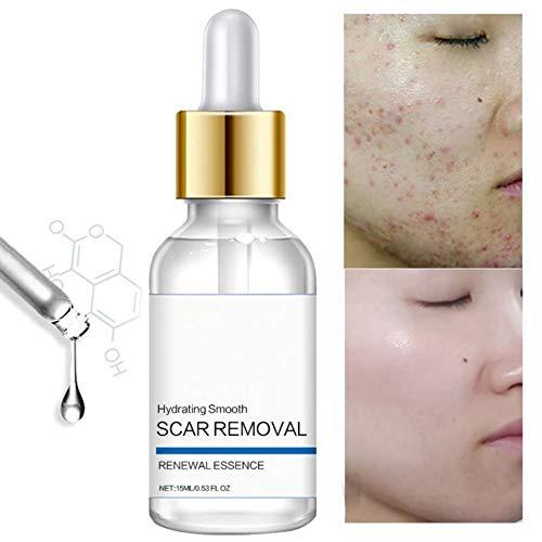 Tratamiento para la eliminación de cicatrices de acné para la cara, quitar y aclarar cicatrices, puntos y marcas, natural, marcas de cicatrices líquidas reparadoras