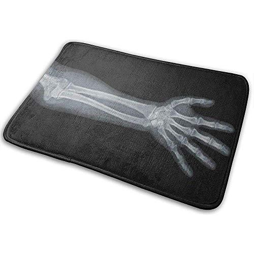 Liumt rutschfeste Fußmatten Xray H X Ray Blick auf Armknochen-Skelett-Körper Gebrochene Outdoor-Teppiche